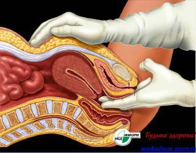 Осмотр девствиницы у гинеколога